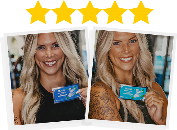 Cleaner Smile Whitening Strips Review
